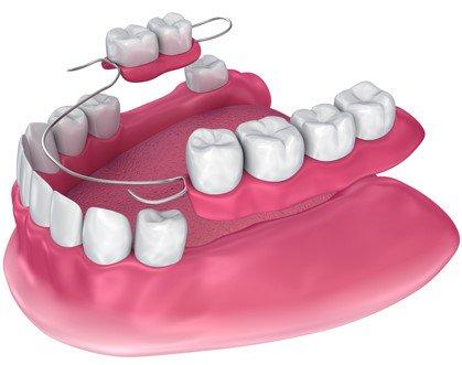 immediate dentures hoppers crossing