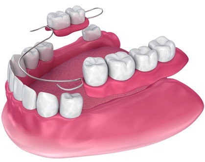immediate dentures hoppers crossing