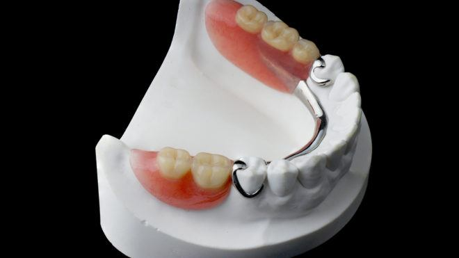 What Is the Cost of Partial Dentures?