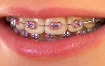 Why Is Orthodontics Important?