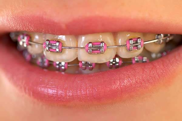 Why Is Orthodontics Important?